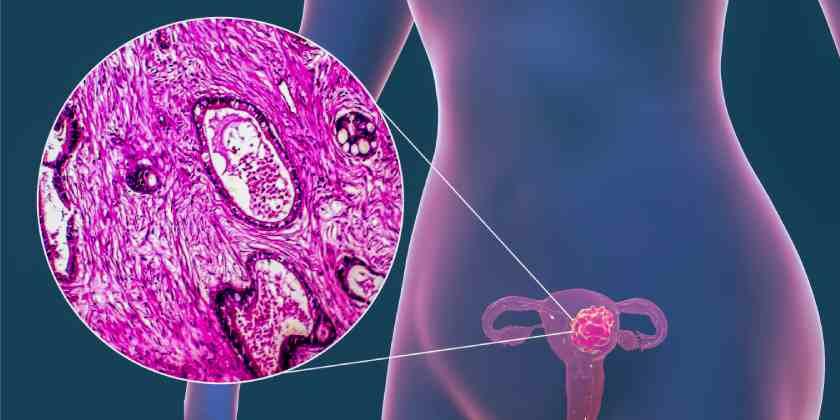La FDA aprueba nueva inmunoterapia para tratar el cáncer de endometrio