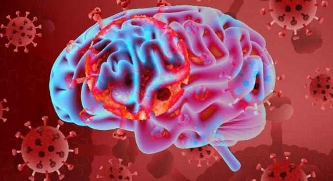El Covid-19 también puede afectar el cerebro, estudio de otra secuela del virus